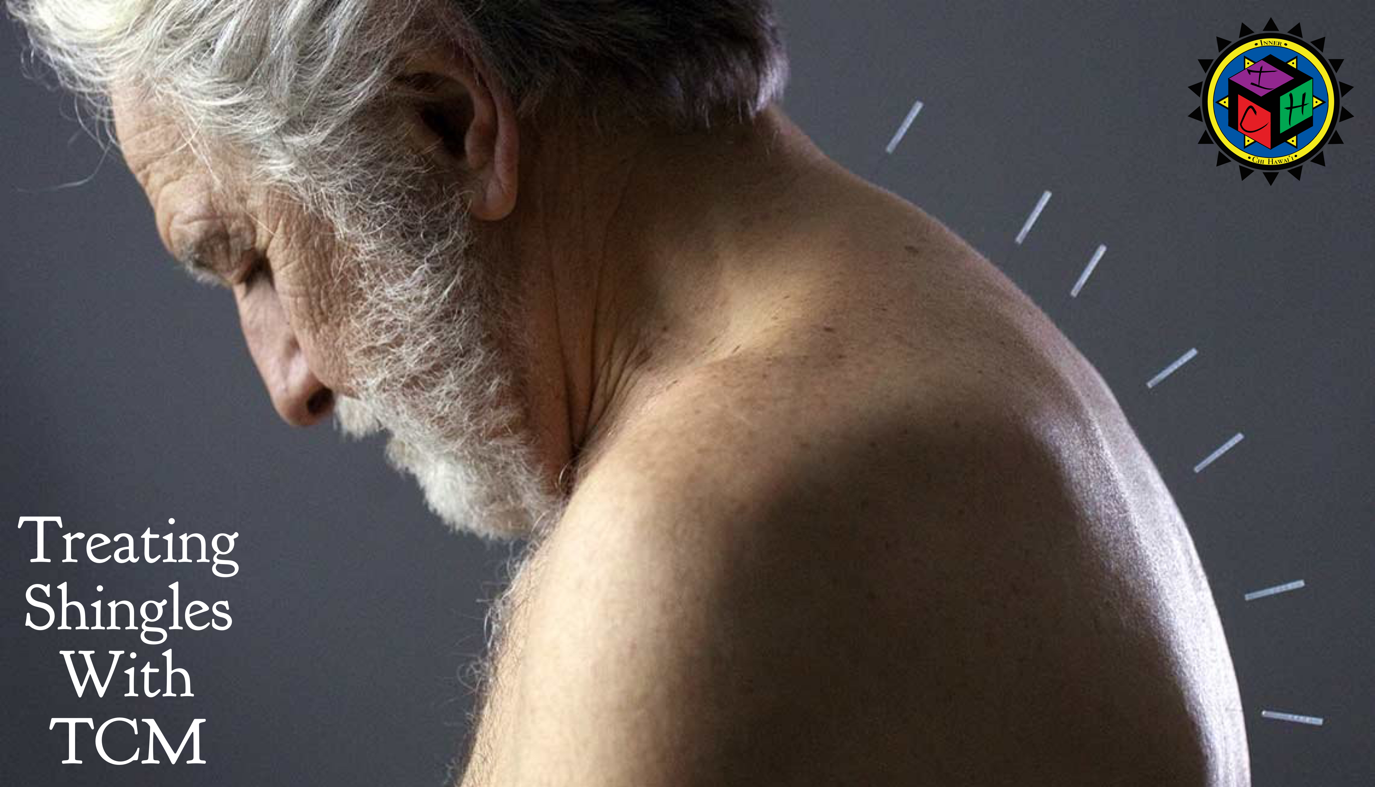 Acupuncture and Herbs Stop Shingles Pain, Outperforms Drugs